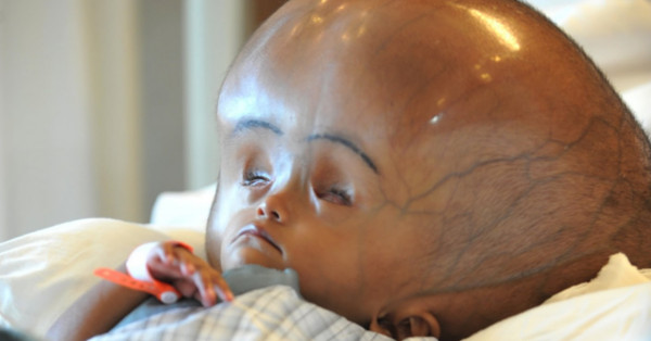India: Baby Born With Two Minds in Same Body