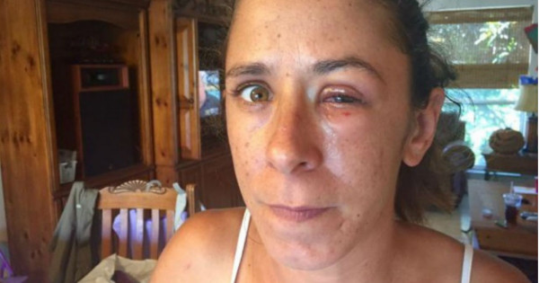 Woman Goes Blind After Syphilis Ridden Brother Pranks Her With Facial Cum Shot
